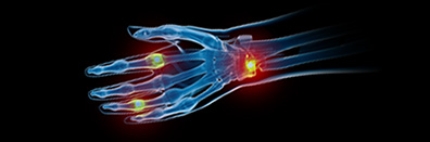 Correlation Evidence of Infection in Patients with Rheumatoid                                                 Arthritis