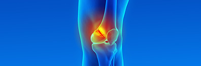 "Distal Femur Fracture with Complete ACL Disruption"". A Case Study                                                 and Review of the Literature"
